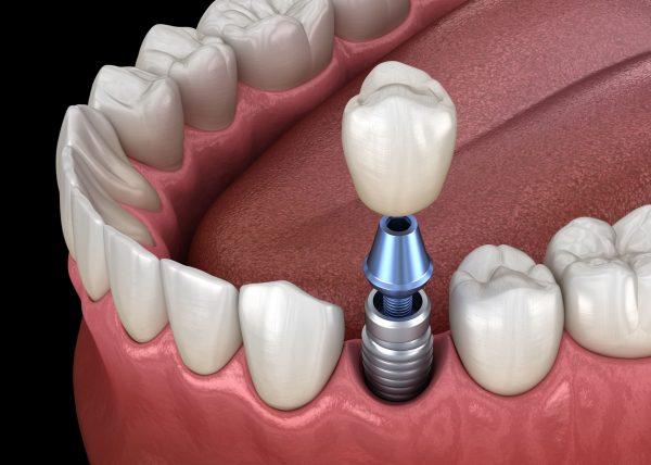 Alles unter einem Dach: Implantologie bei Bohlsen und Steinebrunner